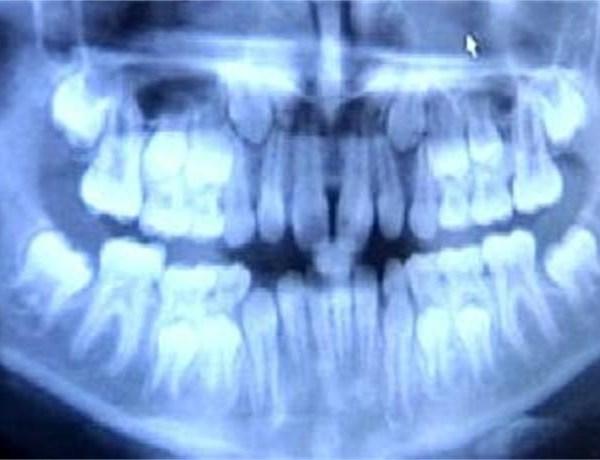 Dental _-1482962448150018955