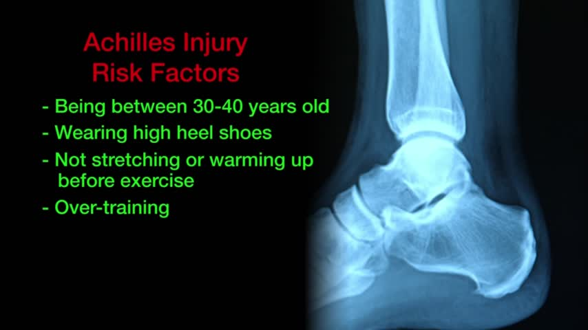 Health Cast- Achilles Tendon Injuries_50886241