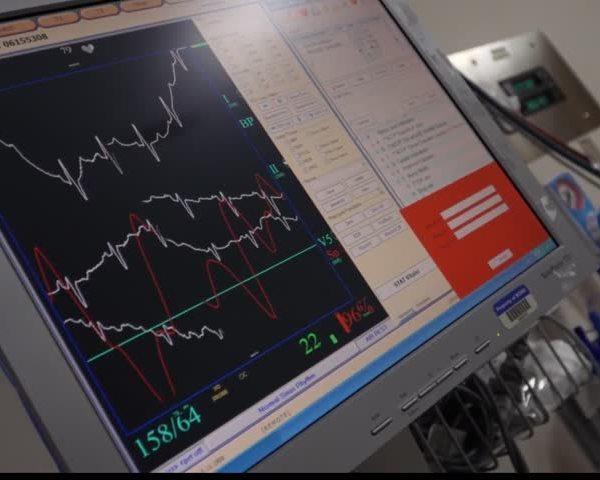 Healthcast- DyeVert makes imaging safer_85730654