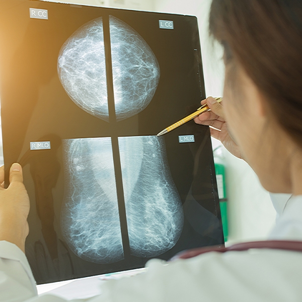 mammogram-doctor-breast-cancer_1539205708636_407165_ver1_20181011210004-159532